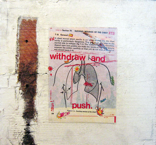 Withdraw and Push, David Kietzman